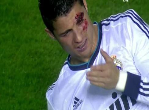 Levante 1-2 Real Madrid