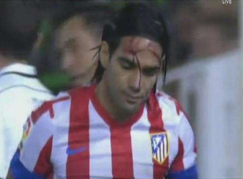 Valencia 2-0 Atletico Madrid