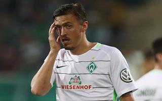Wuerzburger Kickers vs Werder Bremen